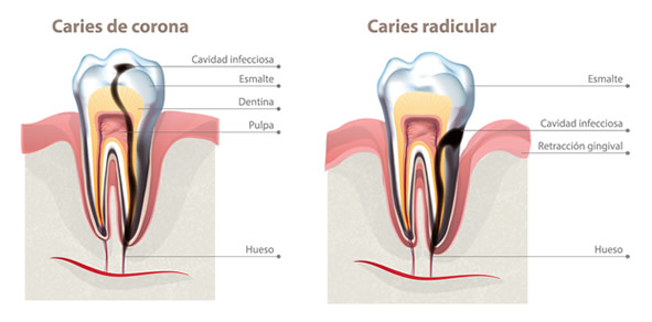 Como utilizar hilo dental